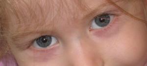 katies-puffy-eyes